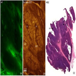 Optical Coherence Tomography and Autofluorescence Imaging of Human Tonsil